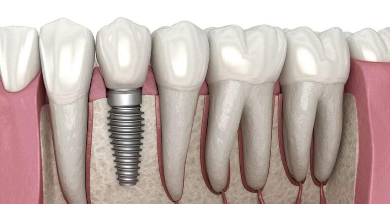 implantátumra korona