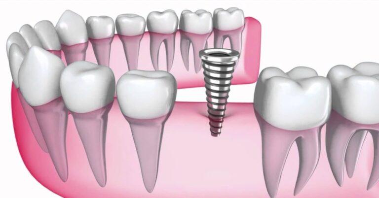 korona rögzítése implantátumra