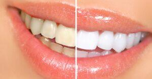 rendelői fogfehérítés