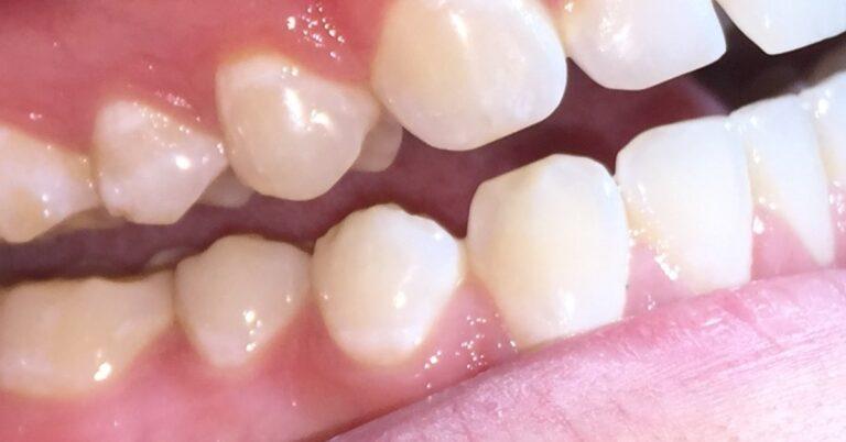 fogkopás kezelése