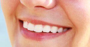 szabályos fogsor
